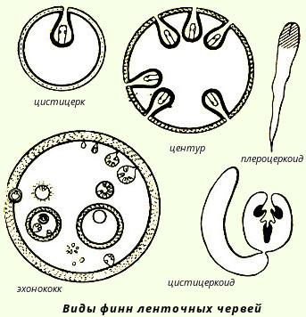 ленточные черви у человека симптомы