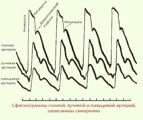 Гипертоническая болезнь сосуды