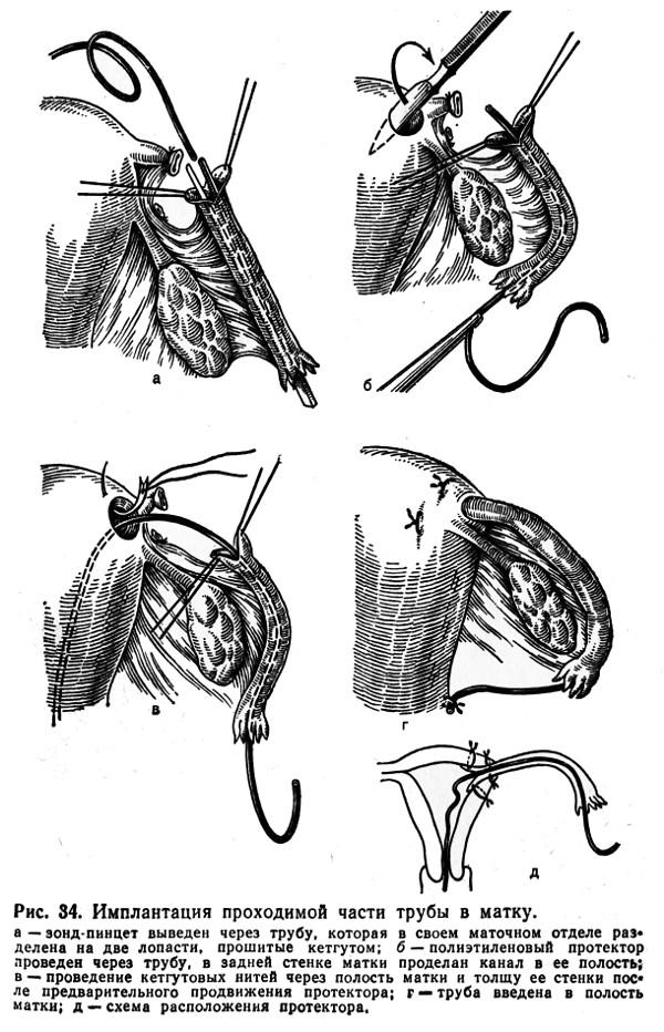 Сальпингостомия