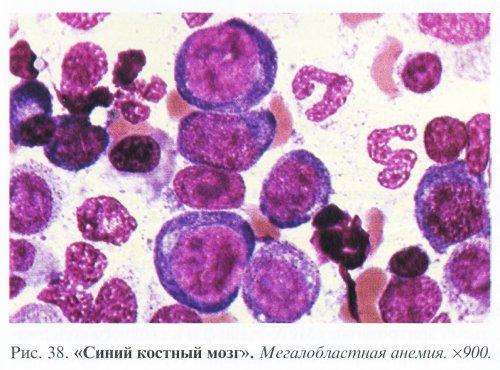 Анемии, обусловленные дефицитом витамина B12 и фолиевой кислоты