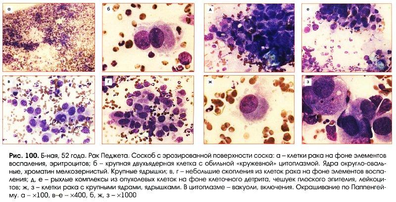 Пенистые клетки педжета