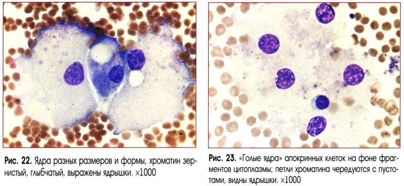 Массы клетки молозивных телец типа бесструктурные