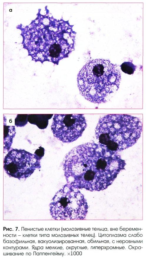 Пенистые клетки в гистологии гинекологии