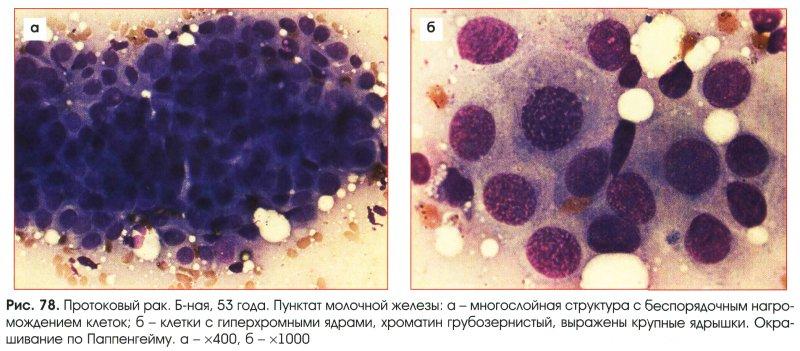 Фетопатия плода при гестационном сахарном диабете беременных