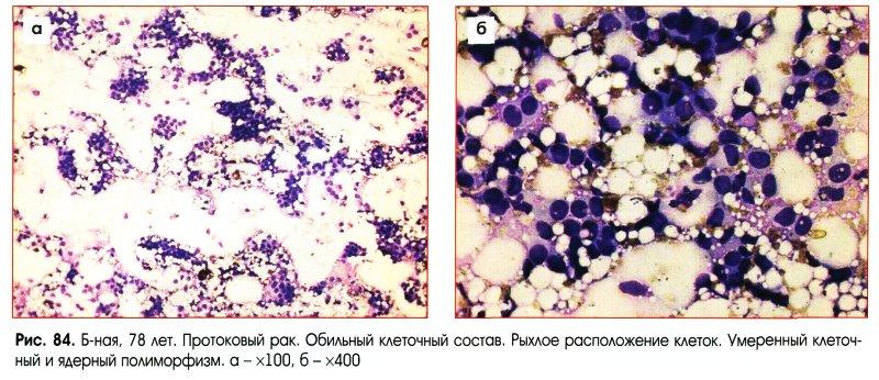 Артериальной гипертензии в анамнезе
