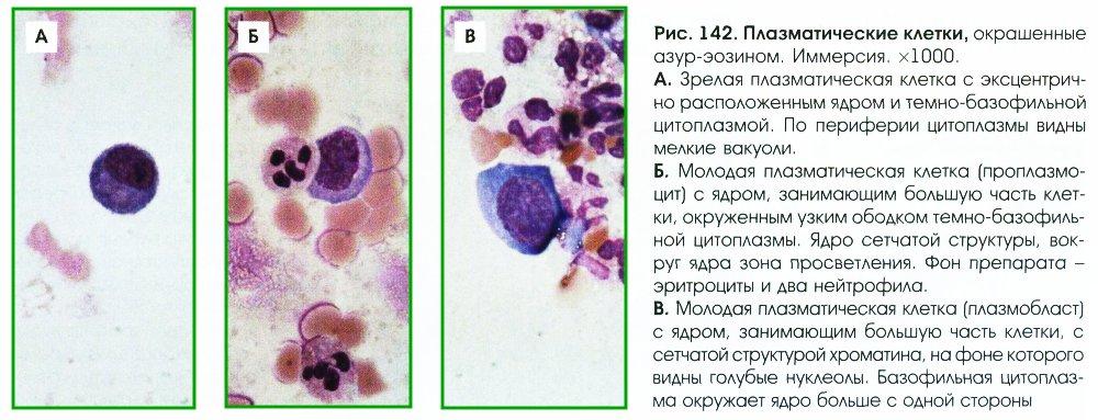 Плеоцитоз фото
