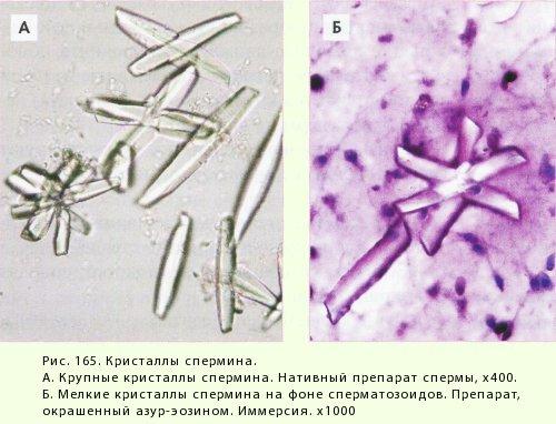 morfologiya-nativnoy-spermi