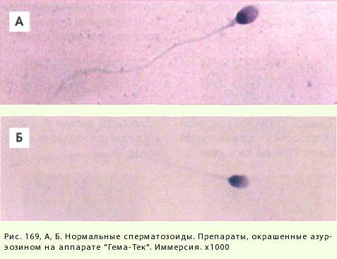 patologicheskie-formi-v-spermogramme