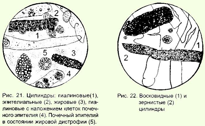 елена малышева очищение от паразитов