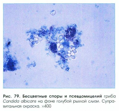 фото дрожжевидных грибков влагалище