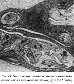паразиты в животе человека