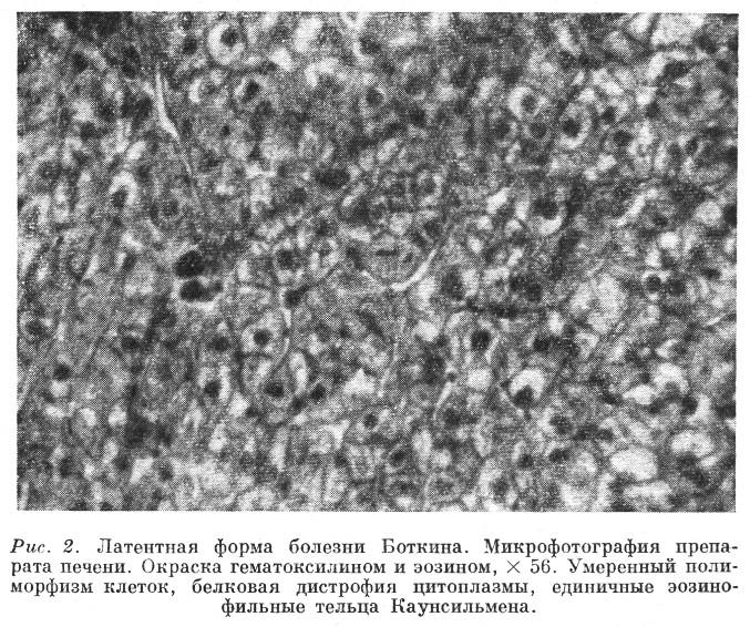 Клетки Купфера фото