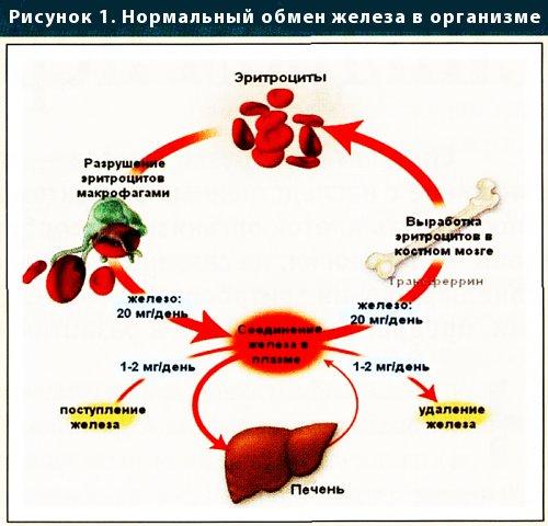 Синдром перегрузки железа.