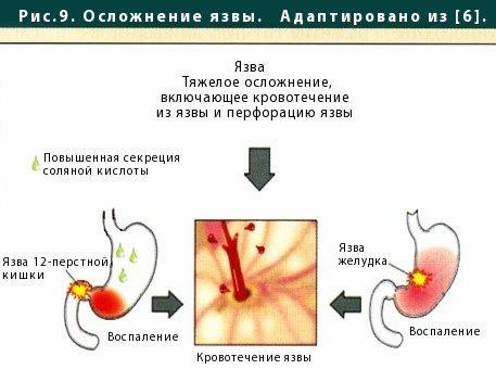 При беременности бывает боли с левой стороны