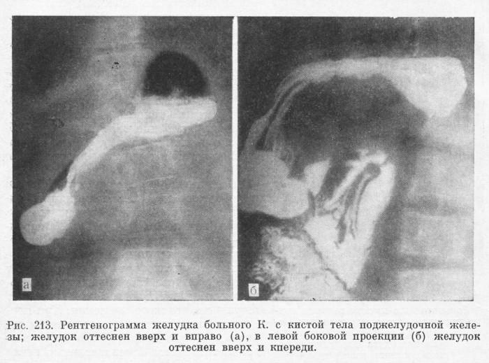 Холецистоэнтеростомия