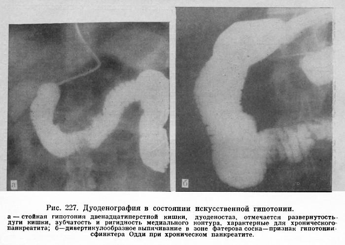 Панкреатограмма