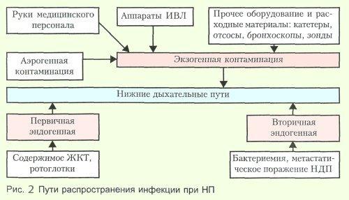 нозокомиальной пневмонии