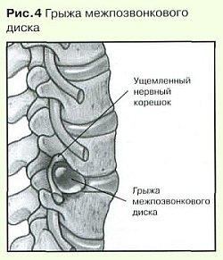остеохондроз деформирующий спондилоартроз Лечение спондилоартроза пояснично-крестцового отдела ...