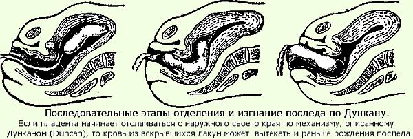 второй период родов картинки